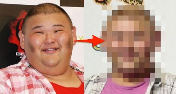 【驚き】安田大サーカスHIROが余命寿命0宣告!?しかしダイエットを見事成功させ、激やせした姿が話題に・・・。